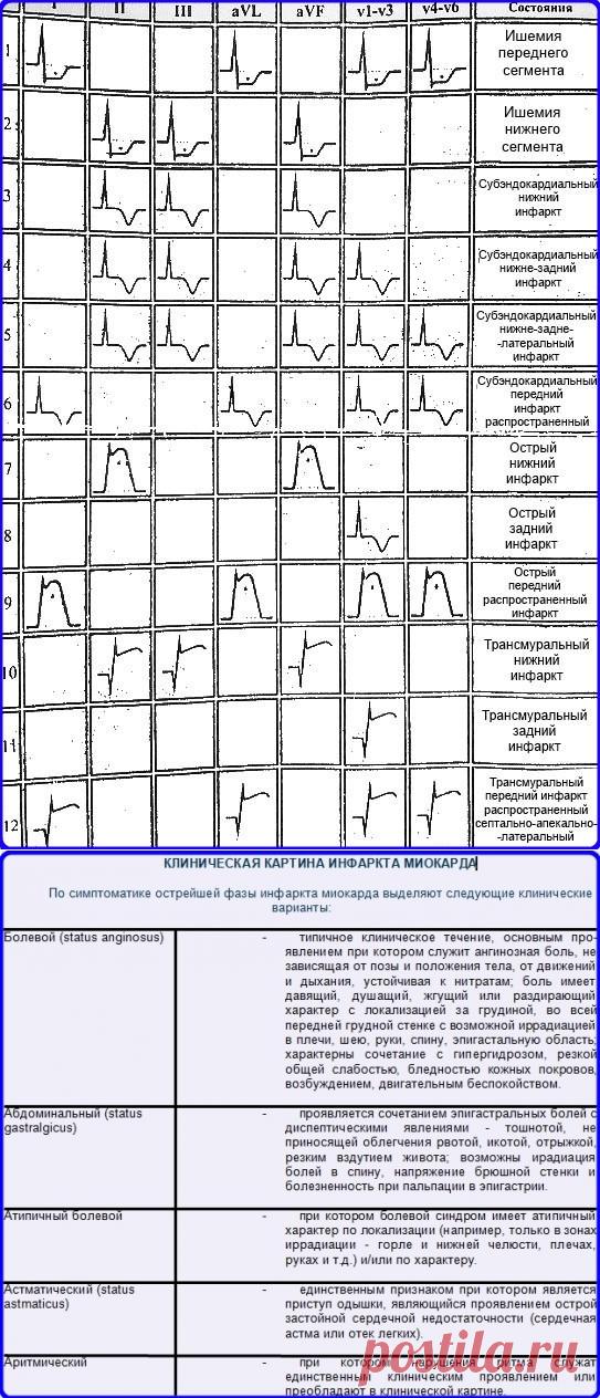 Помощи для шпаргалки электрокардиографии по скорой