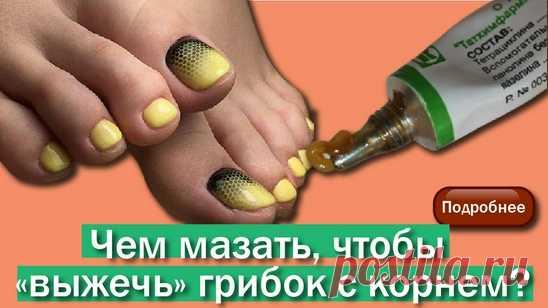 Устранение грибка. Избавление от зудa, запaxа и трещин. Восстановление ногтя. Мед центр