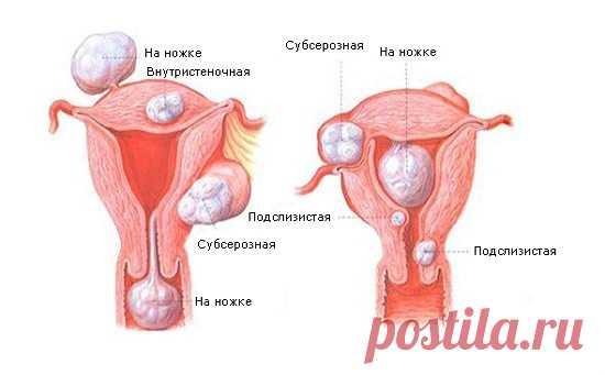 """Лечение фибромиомы и мастопатии Народные рецепты от всех болезней """" БУДЬ ЗДОРОВ 2 Постила"""