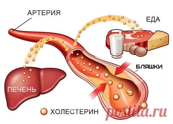 Естественные способы уменьшения уровня плохого холестерина в течение 4 дней - Упражнения и похудение Вы должны это знать! Здесь мы узнаем о естественных способах снижения уровня холестерина. Холестерин можно определить как жирное или восковое вещество, присутствующее в крови, которое требуется для нормального функционирования организма. Когда предел холестерина превышает лимит, который составляет 200 мг / дл, то это определяется как более высокий уровень холестерина. Мы по...