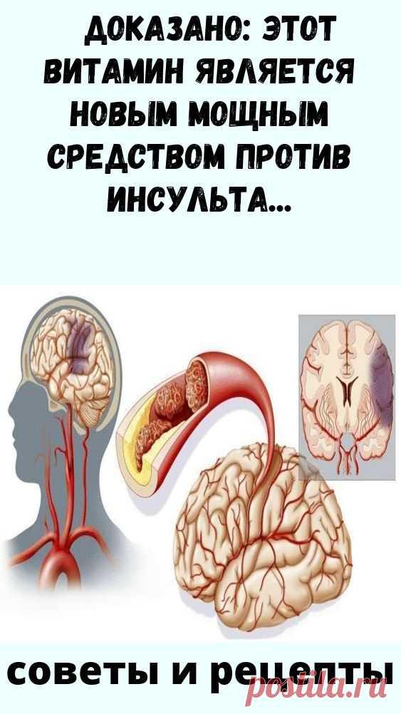 Доказано: это является новым мощным средством против инсульта К начальным симптомам церебральной ангиодистонии относятся:  Головные боли; Шум у ушах; Общая слабость, вялость, сонливость; Низкая трудоспособность; Нарушения сна, бессонница; Забывчивость; Ощущение онемения в конечностях; Отеки в руках и ногах; Ощущение потемнения в глазах; Снижение зрения; Гормональные сбои в организме.