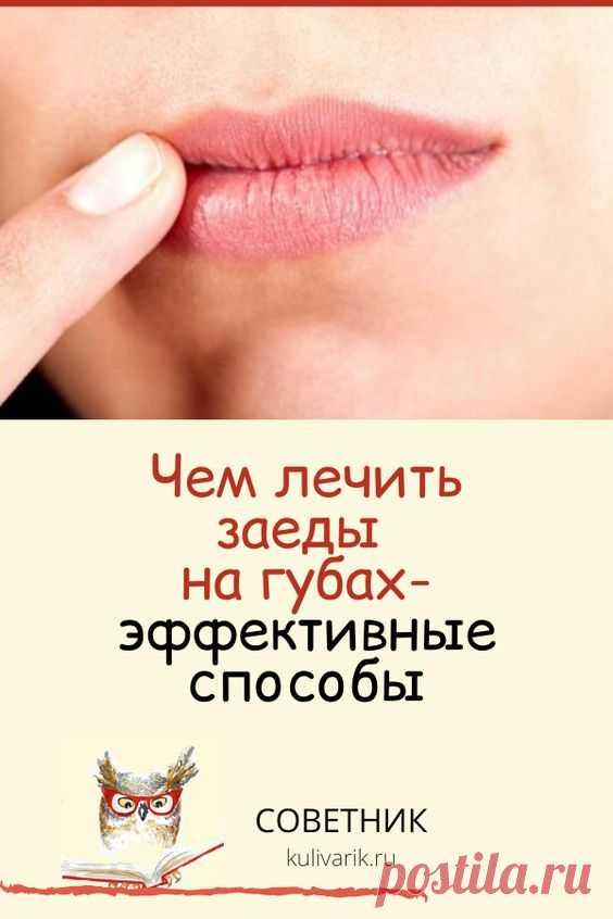 Чем лечить заеды на губах: эффективные способы
