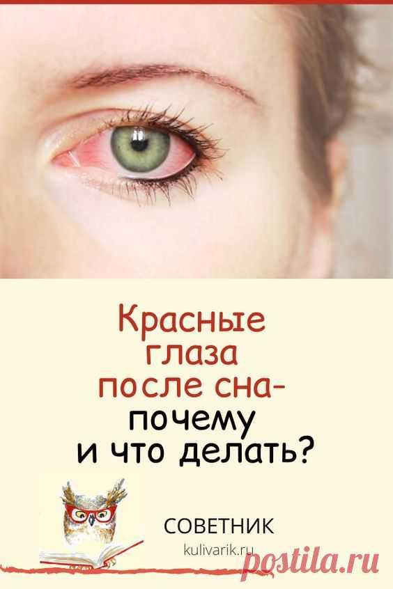 Красные глаза после сна: почему и что делать?