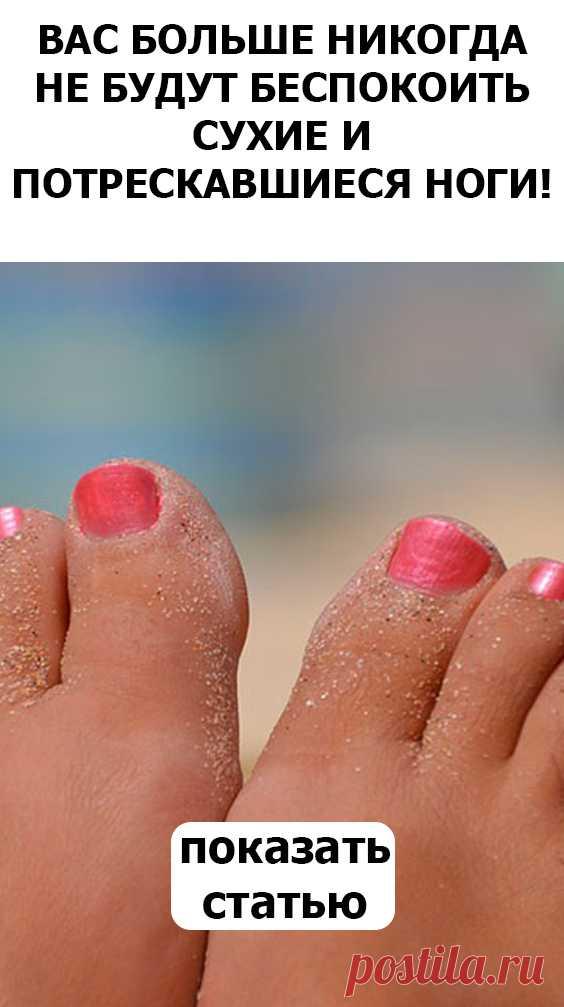 СМОТРИТЕ Вас больше никогда не будут беспокоить сухие и потрескавшиеся ноги!