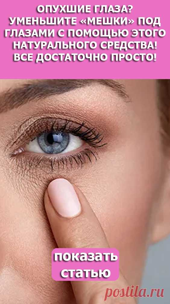 Смотрите! Опухшие глаза? уменьшите «мешки» под глазами с помощью этого натурального средства! все достаточно просто!