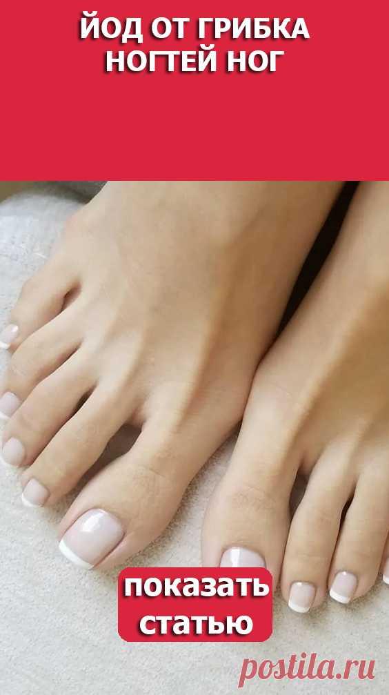 СМОТРИТЕ Йод от грибка ногтей ног