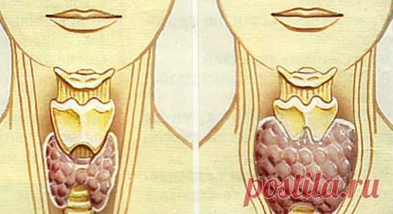 WE TREAT KNOT ON THE THYROID GLAND