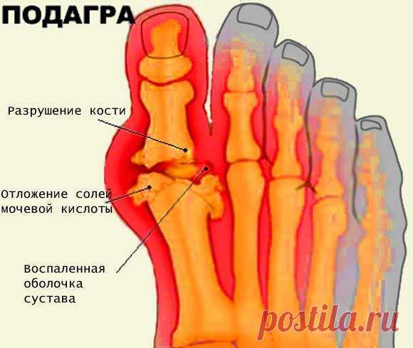 Подагра - симптомы и лечение, диета при подагре