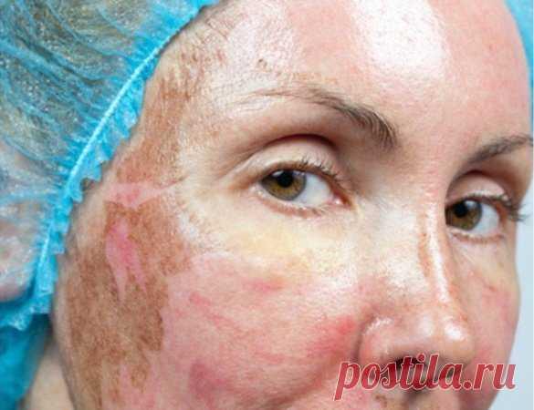 Сильное средство от пигментных пятен на лице, которое спасло мою кожу (испробовано на себе) | Ver-A | Яндекс Дзен