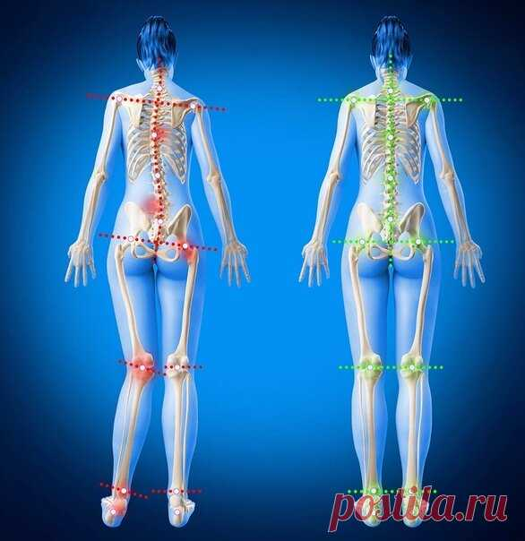 Боль в тазобедренном суставе и перекос таза | Доктор Гульнара Мазитова | Яндекс Дзен