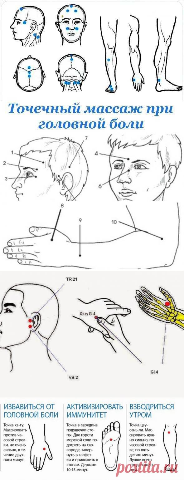 Картинка точек головной боли
