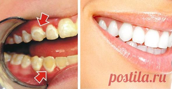 Будьте своим собственным стоматологом! Смотрите, как удалить кариес всего за 5 минут! - Стильные советы
