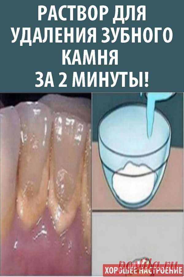 Раствор для удаления зубного камня за 2 минуты!