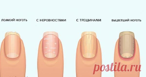 Предупреждающие признаки ваших ногтей о вашем здоровье - Сайт для женщин Крайне важно вовремя заметить те или иные признаки! Хотя большинство людей не считают их важными, наши ногти действительно могут многое рассказать о нашем здоровье. Любое изменение ногтей может указывать на определенную болезнь или состояние, поэтому мы должны уделять им больше внимания. Взгляните на свои ногти – они изменили свой цвет или начали отслаиваться? Они толще, …