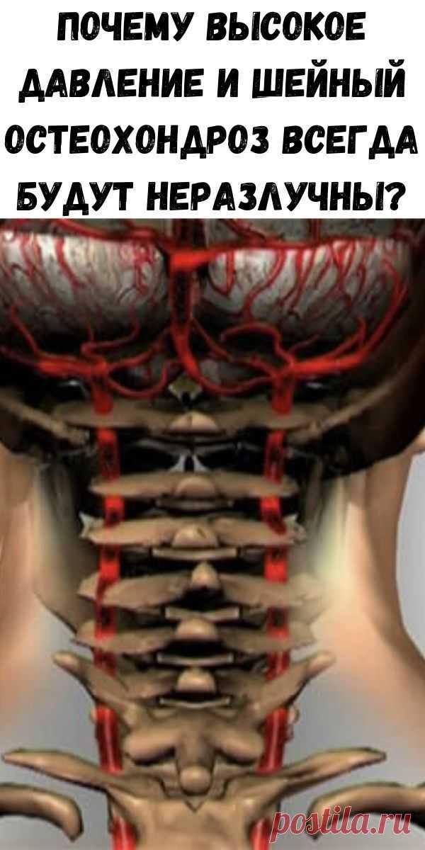 Как снизить давление при шейном остеохондрозе   Советы доктора