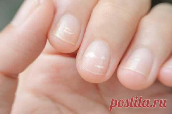 Полоски на ногтях: откуда они и как предотвратить их появление? — СОВЕТ !!!
