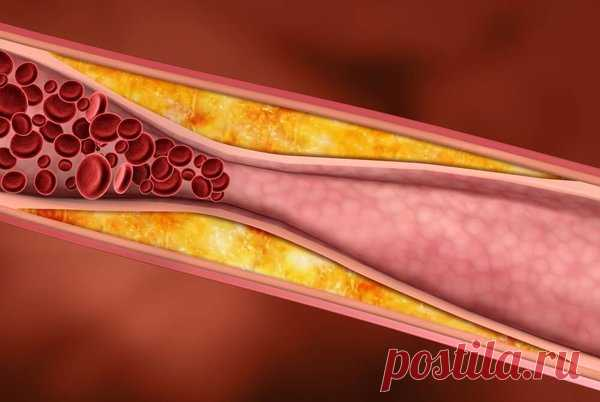 6 important products which will help to clear vessels and to lower cholesterol | the Healthy lifestyle | Yandex the Zen