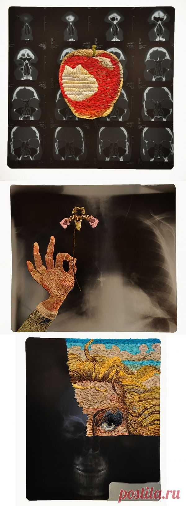 Вышитые рентгеновские снимки (подборка) / Вышивка / Модный сайт о стильной переделке одежды и интерьера