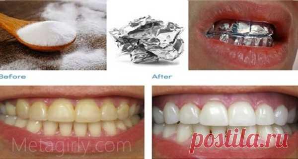 ¡Envuelva sus dientes con papel de aluminio y vea la magia! – Hoy En Belleza