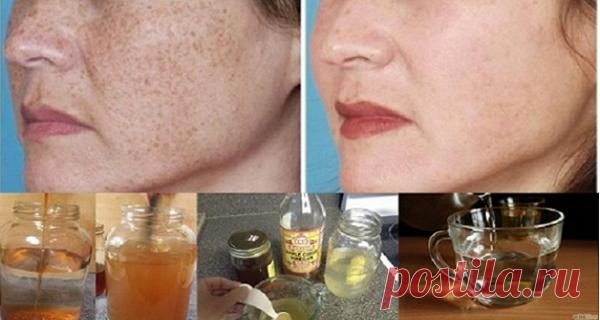 ¡La forma más rápida y eficaz de eliminar manchas y cicatrices de la piel! – Hoy En Belleza