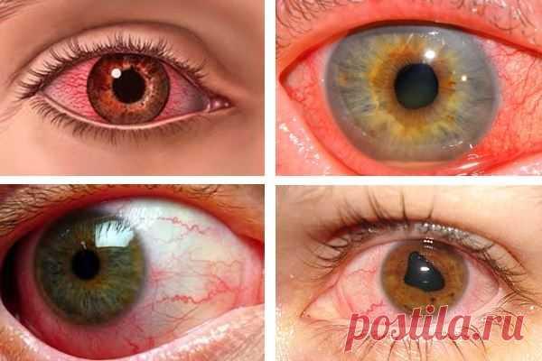 Увеит глаза: что это такое, симптомы, лечение, причины, диагностика, препараты, прогноз, фото