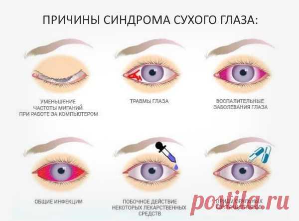 Синдром сухого глаза: симптомы, причины, лечение сухости, препараты, диагностика, что такое, кератоконъюнктивит