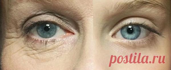 Как уплотнить кожу под глазами? Интересные секреты | 7 минут на красоту | Яндекс Дзен