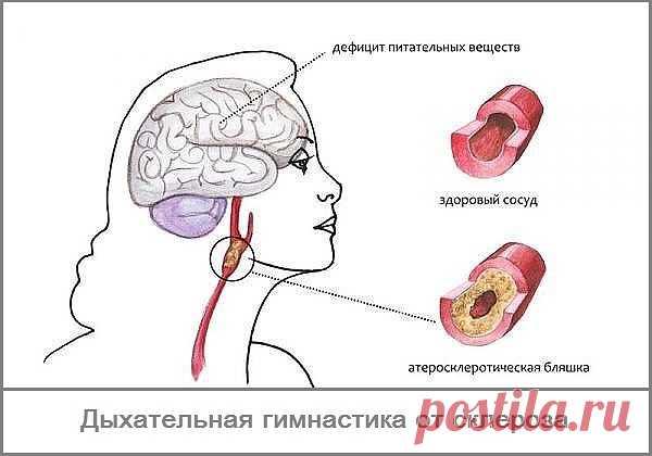 Дыхание от склероза - дыхательная гимнастика Л.А.Анисимова.