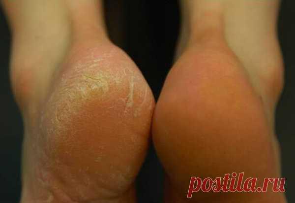 Аспириновый пилинг для ног - гладкие пяточки как после салона   Будь красивой вместе со мной   Яндекс Дзен