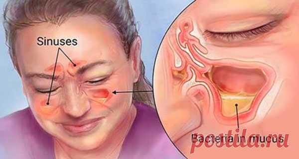 Вы сможете быстро избавиться от синусита, насморка, простуды и вирусов с помощью этого простого метода! - Женский Журнал Очень простое средство! Если вы почувствовали первые признаки простуды или гайморита, то достаточно выпить всего 1 стакан! Проверено! Синусит в наши дни чрезвычайно распространен. Люди с аллергией, астмой, структурными блокировками в носу или синусах, и люди со слабым иммунитетом более склонны к этому. Синусит на самом деле является воспалением ткани, вы...