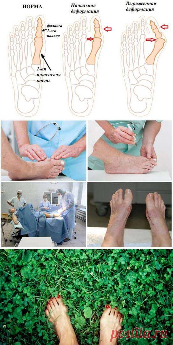 Выпирающая КОСТОЧКА на ноге, болевые ощущения, искривленные пальцы, неэстетический вид - все это