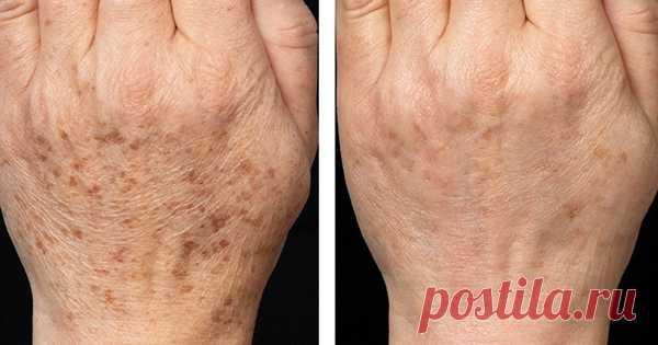 6 действенных средств для борьбы с пигментными пятнами - Советы и Рецепты  Меланоциты — это клетки, которые отвечают за основную пигментацию кожи человека. Они вырабатывают самый главный и темный пигмент кожи — меланин. Но случается такое, что по некоторым причинам в определенных местах меланоциты вырабатывают меланин в избытке и это приводит к образованию разнообразныхпигментных пятен. Именно таким образом у нас появляются все темные пятна на лице …