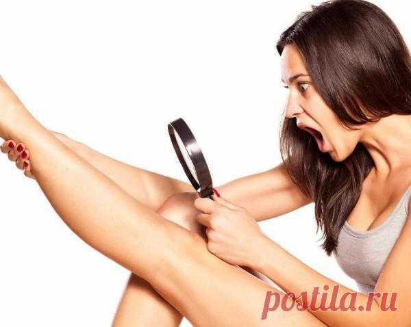 Как быстро уменьшить раздражение после бритья ног Каждая представительница прекрасного пола мечтает о красивых и гладких ногах. Однако иногда девушкам приходится отказываться от коротких юбок из-за раздражения после бритья. Воспаления на коже не только ухудшают внешний вид, но и доставляют дискомфорт: зуд и жжение.