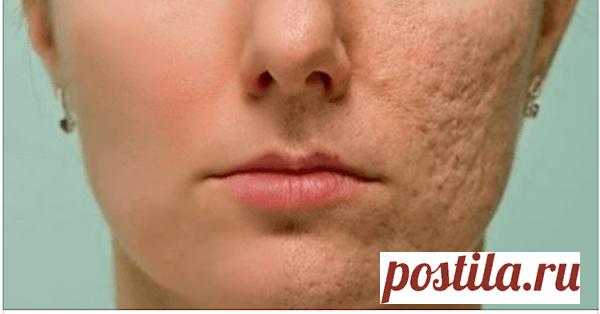 Протрите этим любой шрам, морщину или пятно на коже и посмотрите, как они исчезнут через несколько минут!Даже врачи удивлены! | Wisestorie