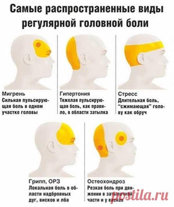 Давление или мигрень? 7 причин головной боли и что делать - Хитрости Жизни - медиаплатформа МирТесен