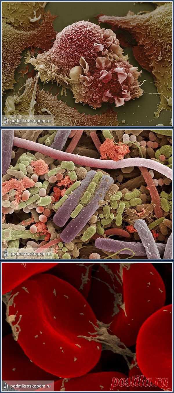 (+1) - Фотографии под микроскопом | Улетные картинки