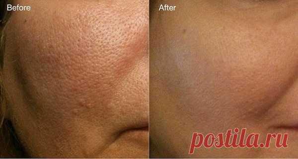 Elimina los poros dilatados para siempre con esta mascarilla supereficaz de 2 ingredientes – Hoy En Belleza