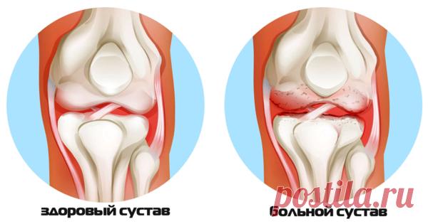 Лучшие продукты от разрушения суставов и связок. | Здоровье и Питание | Яндекс Дзен