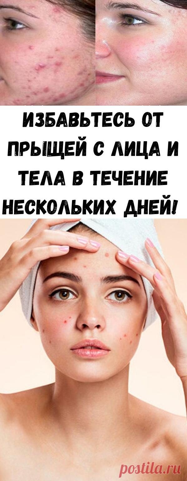 Избавьтесь от прыщей с лица и тела в течение нескольких дней! - Советы для тебя