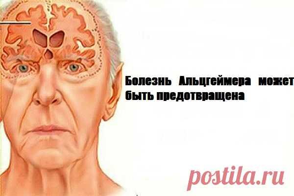 Болезнь Альцгеймера может быть предотвращена: только одно упражнение в день и ваша память станет намного лучше    Практический метод профилактики болезни Альцгеймера           Альцгеймер является одним из самых распространенных дегенеративных заболеваний во всем мире, как правило, затрагивает очень старых люд…