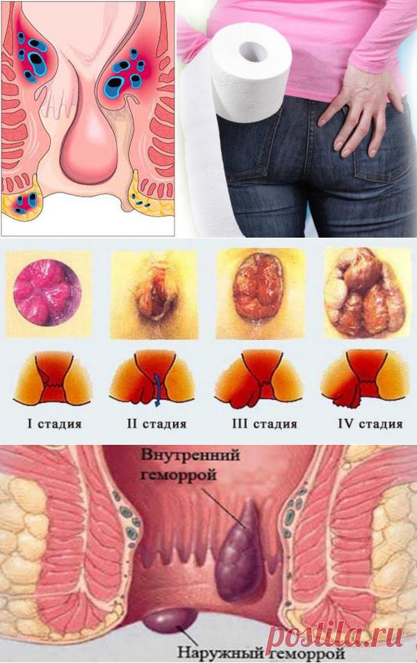 Проявляется Геморрой Симптомы