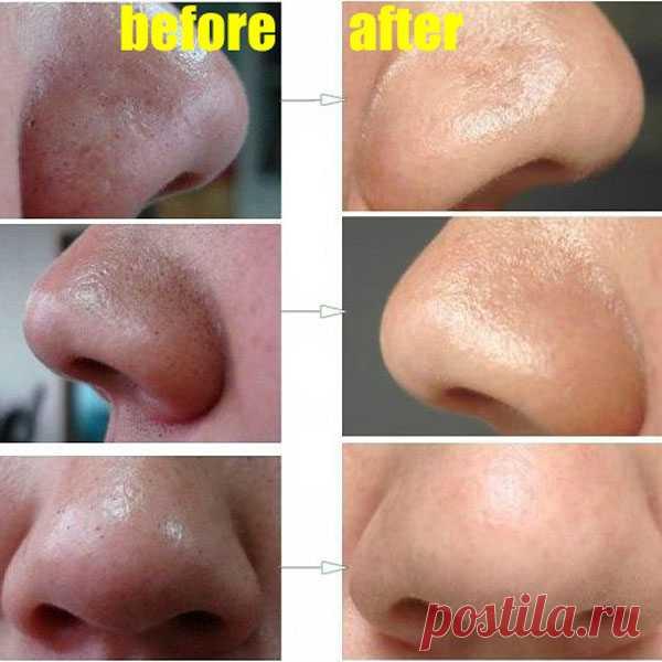 Простой и быстрый способ удаления глубоких черных точек на лице