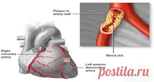 Una receta de 3 ingredientes puede DISMINUIR la acumulación de placa en las arterias y REDUCIR el colesterol – Hoy En Belleza