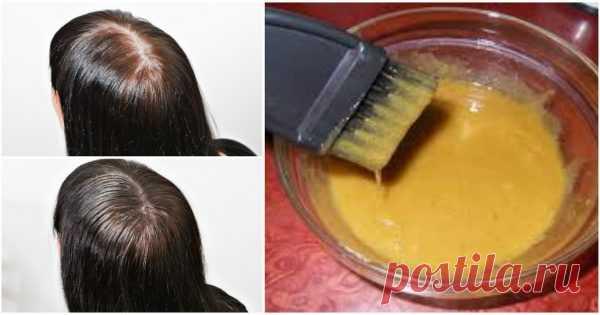 Горчица с сахаром творит чудеса. Густые волосы всего за месяц и очень быстрый рост Горчичный порошок давно известен как отличныйстимулятор роста волос. Кроме того, он поглощает лишний жир, улучшает кровоснабжение кожи, регулирует работу сальных желез.   Однако такой непростой ингр…