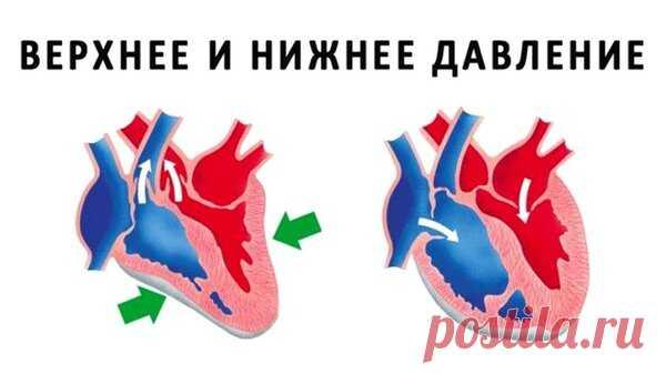 Верхнее и нижнее давление – что нужно знать каждому   На каблуке   Яндекс Дзен