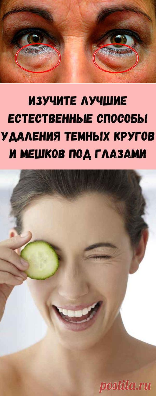 Изучите лучшие естественные способы удаления темных кругов и мешков под глазами - Советы на каждый день