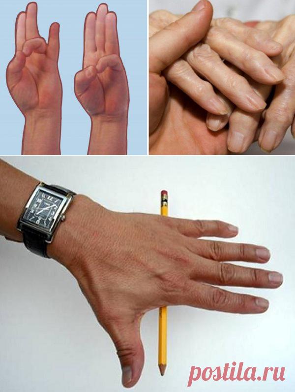 8 упражнений для рук, чтобы избавиться от боли при артрите. Почувствуй облегчение прямо сейчас! — Копилочка полезных советов
