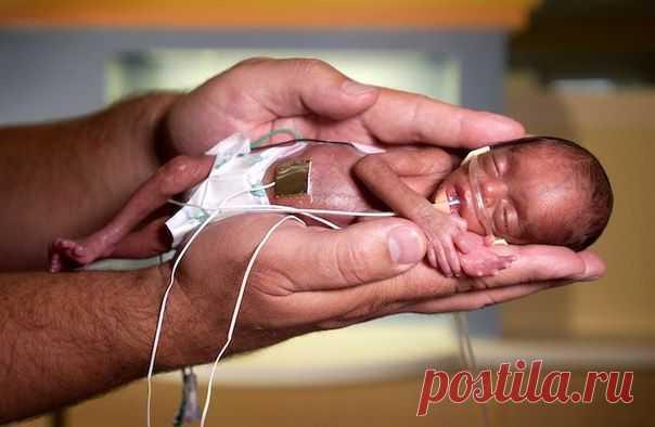 Чудом оставшийся в живых после аборта » Красота Жизни