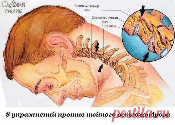 Ocho ejercicios contra sheynogo de la osteocondrosis\u000a\u000aLas primeras manifestaciones sheynogo de la osteocondrosis — el dolor en la espalda, los dolores de cabeza, el vértigo, \