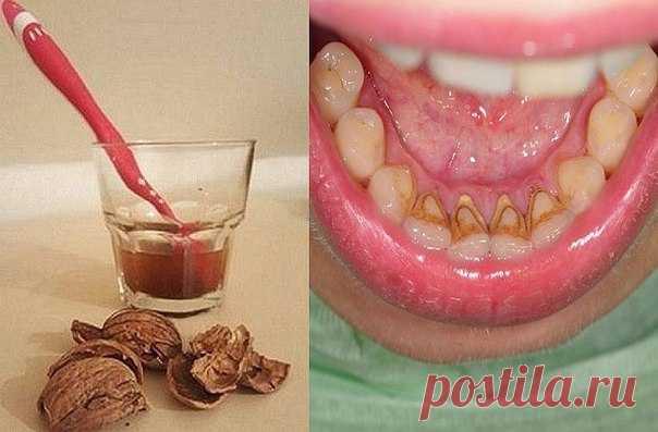 Как избавиться от зубного камня при помощи 1 простого средства.   Коричневый или желтый налет на зубах можно удалить дома! Зубной камень — распространенная проблема, и современная стоматология предлагает множество способов его устранения. Но существует метод, который работает не хуже, при этом экономя твои средства!   Как удалить зубной камень и налет   ТЕБЕ ПОНАДОБИТСЯ   40 г скорлупы грецких орехов  1 ст. воды   ПРИМЕНЕНИЕ  Отвари скорлупу в воде в течение 20 минут. Проц...